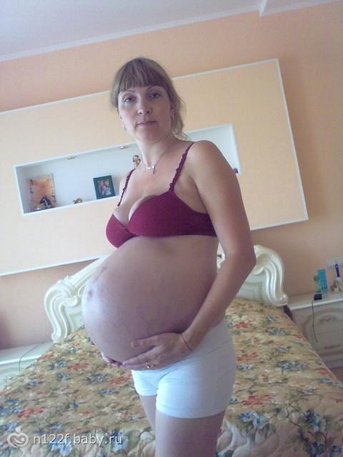 Спали отеки 38 неделя беременности