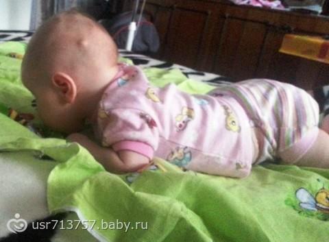 Как только родилась моя крошка, я заметила у нее на голове странную шишку. .  Еще удивилась-откуда она у нее и как...