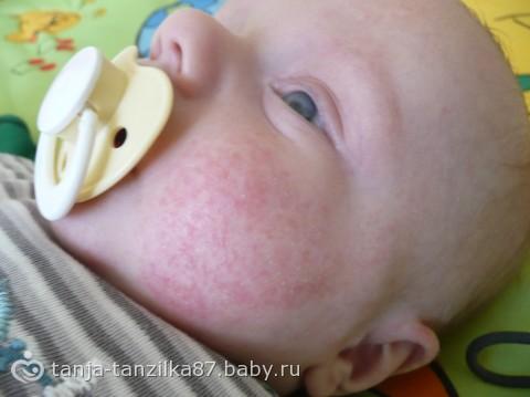 аллергия на нутрилон гипоаллергенный 1