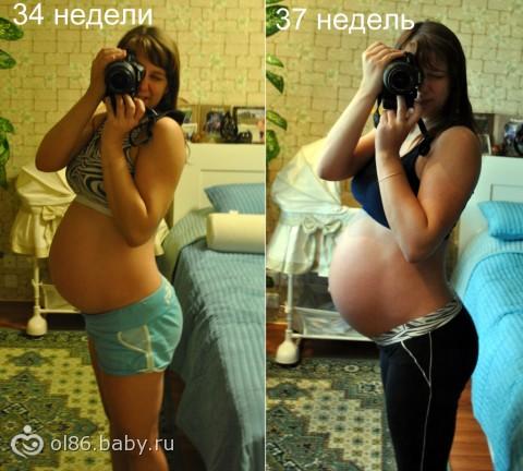 Живот каменеет при 34 неделе беременности