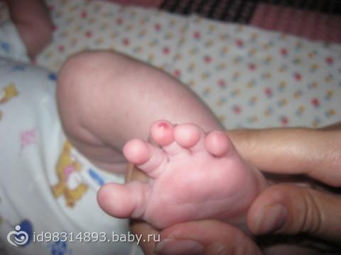 Красный палец у грудничка