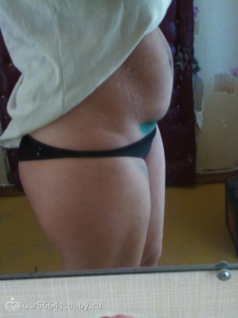 Беременность через 9 месяцев после кесарева форум