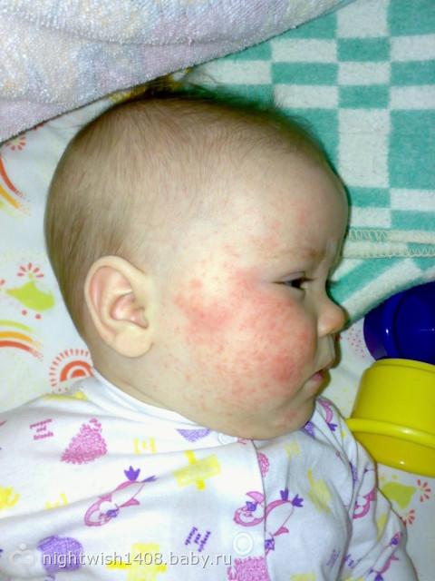 фото аллергии на писе у ребенка фото № 319677 загрузить